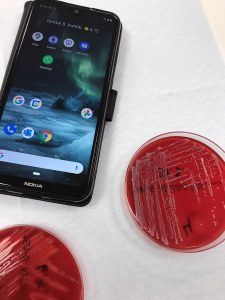 Kuvituskuva, jossa kännykkä ja kaksi bakteeriviljelmää.
